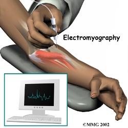 سیگنال های الکترومیوگرافی با شبکه عصبی موجک