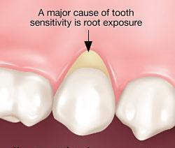 dentinal hypersensitivity